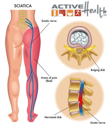 help for sciatica
