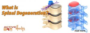 spinal degeneration chiropractic