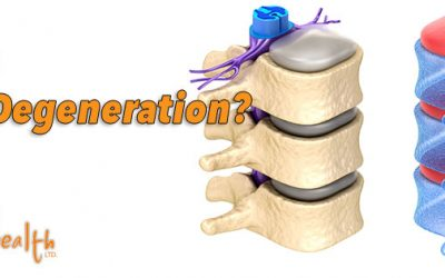 A Chiropractic Look at Spinal Degeneration