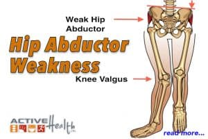 weak hip abductors