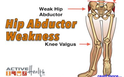 Condition of the Month – Hip Abductor Weakness