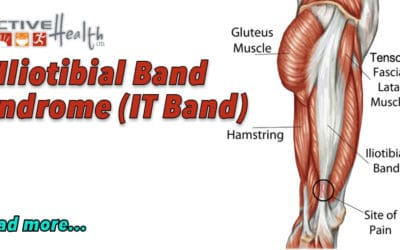 Iliotibial Band Syndrome (IT Band)