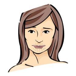 Excessive Facial Hair