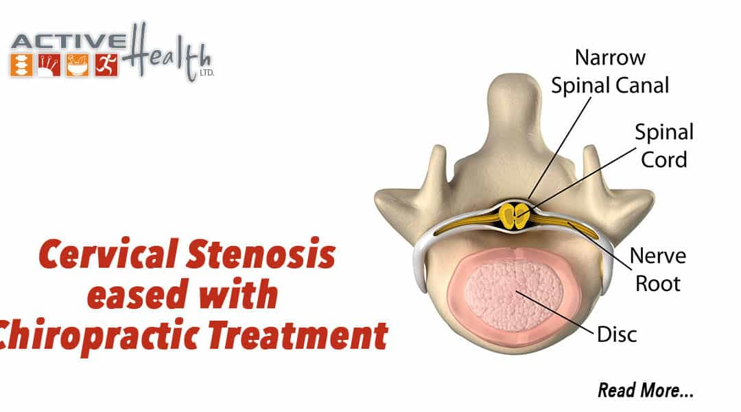 Condition of the Month – (Cervical Stenosis)