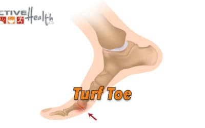 Condition of the Month – (Turf Toe)
