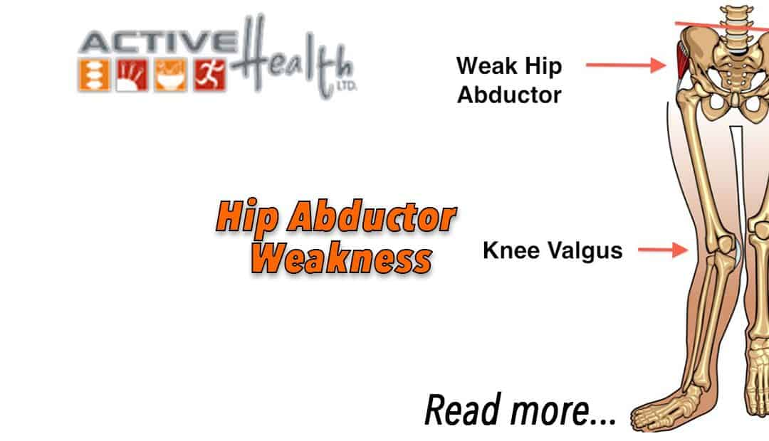 Hip Abductor Weakness
