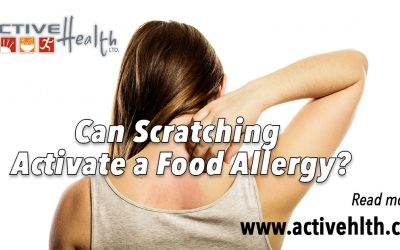 Can Scratching Activate a Food Allergy?