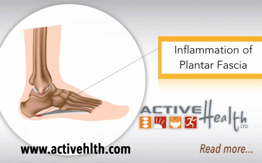 Pain In The Bottom Of Your Foot? It Could Be Plantar Fasciitis. ?