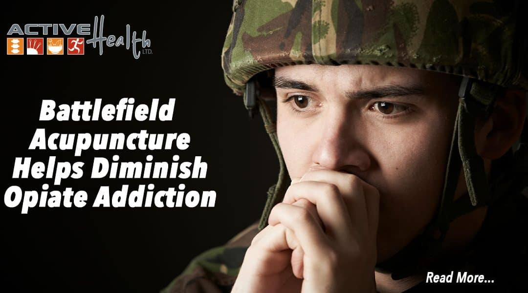 Studies Show Effectiveness of Battlefield Acupuncture (BFA)