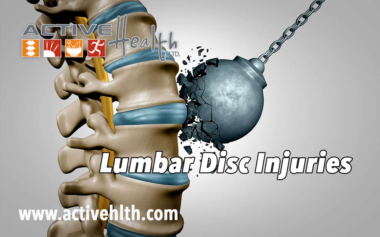 Lumbar Disc Injuries