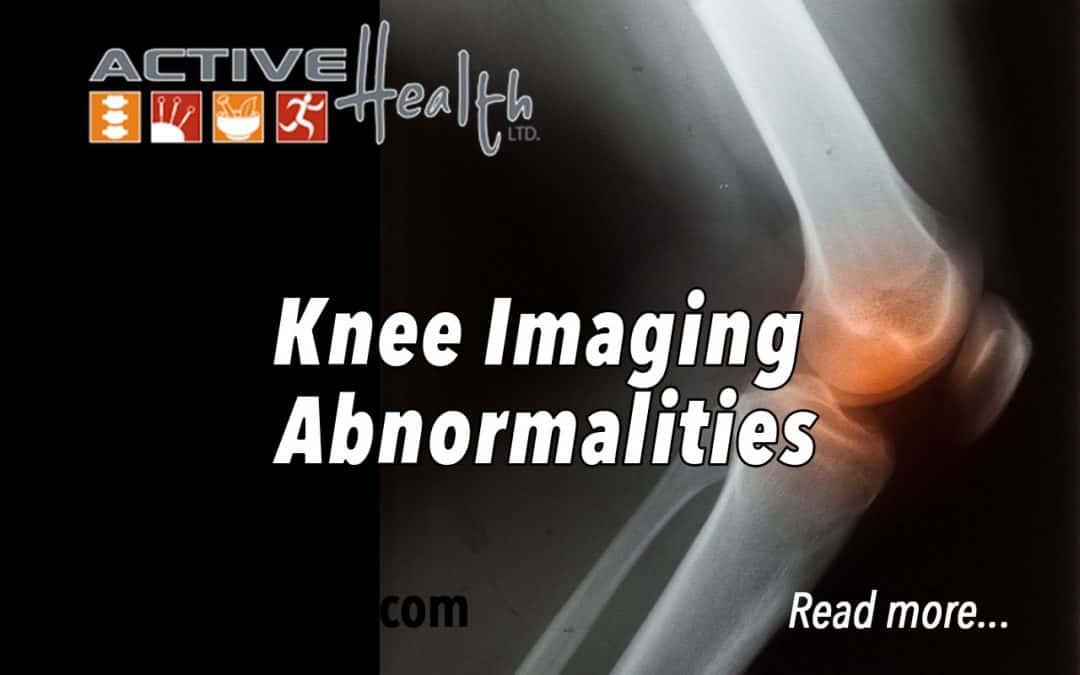 Knee Imaging Abnormalities